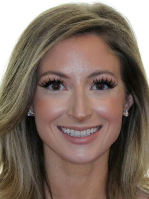 smile after smileexpress invisalign treatment