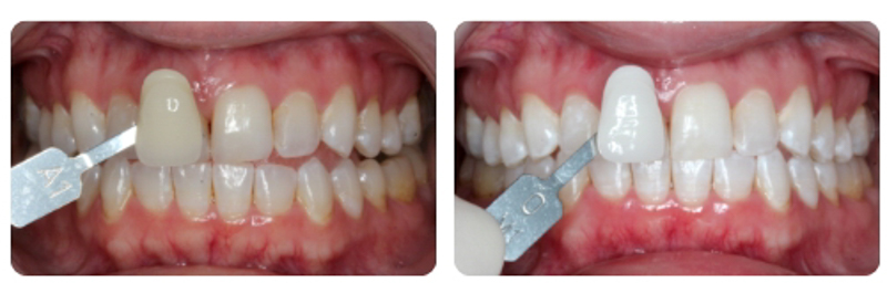 glo whitening before and after