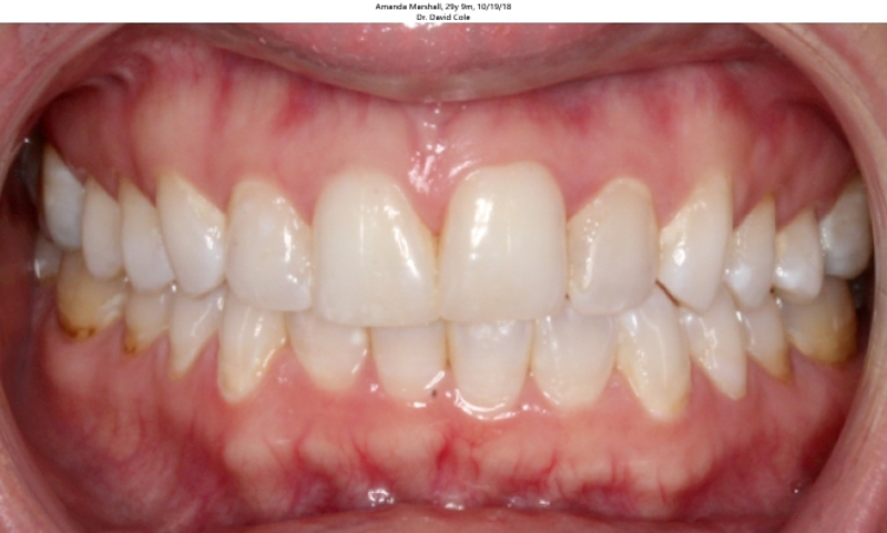 teeth before smileexpress invisalign treatment